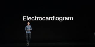 Su WatchOS 5.1.2 di Apple Watch arriva la funzione ECG